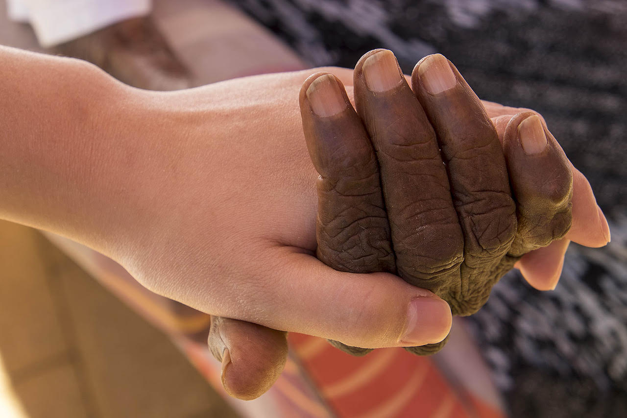 Caring hands at the Hetti Perkins Home for the Aged in Alice Springs. The Hetti Perkins Home is an aged care facility for indigenous Australians. Almost 90% of the patients are sufferers of dementia.